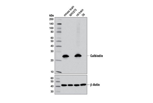 Western blot analysis of extracts from various cell lines using Calbindin (D1I4Q) XP<sup>®</sup> Rabbit mAb (upper) and β-Actin (D6A8) Rabbit mAb #8457 (lower).