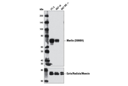Western blot analysis of extracts from PC-3 cells and both wild-type (wt) and <i>Nf2</i> (-/-) mouse embryonic fibroblasts (MEFs) using Merlin (D6N8H) Rabbit mAb (upper) and Ezrin/Radixin/Moesin Antibody #3142 (lower). (MEF wt and MEF Nf2 (-/-) cells were kindly provided by Dr. Andrea McClatchey and Dr. Andrew Gladden, MGH Cancer Center and Harvard Medical School, Charlestown MA).