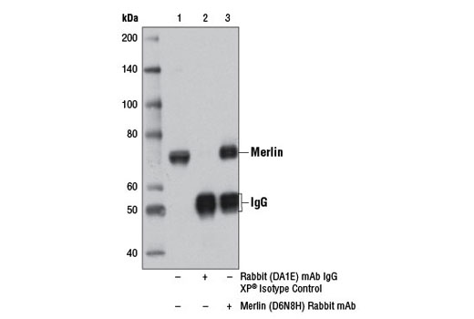 Immunoprecipitation of merlin from mouse embryonic fibroblasts (MEF) cell extracts using Rabbit (DA1E) mAb IgG XP<sup>®</sup> Isotype Control #3900 (lane 2) or Merlin (D6N8H) Rabbit mAb (lane 3). Lane 1 is 10% input. Western blot analysis was performed using Merlin (D6N8H) Rabbit mAb.