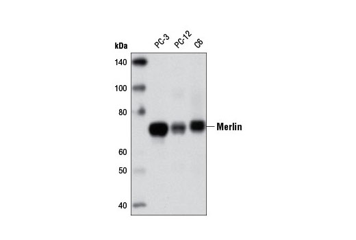 Western blot analysis of extracts from PC-3, PC-12, and C6 cells using Merlin (D6N8H) Rabbit mAb.