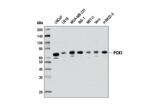 Western blot analysis of extracts from various cell lines using PCK1 (D12F5) Rabbit mAb.