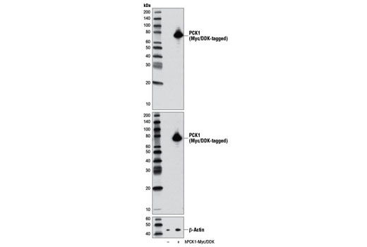 Western blot analysis of extracts from 293 cells, mock transfected (-) or transfected with a construct expressing Myc/DDK-tagged full-length human PCK1 (hPCK1-Myc/DDK; +), using PCK1 (D12F5) Rabbit mAb (upper), DYKDDDDK Tag (9A3) Mouse mAb #8146 (middle), or β-Actin (D6A8) Rabbit mAb #8457 (lower).
