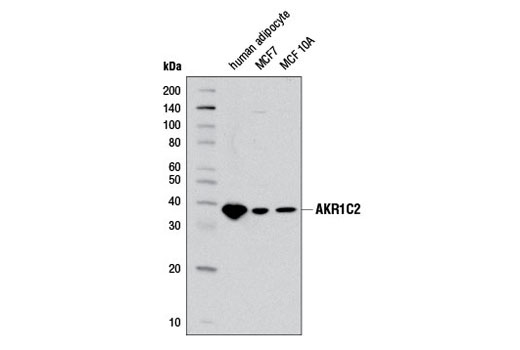Western blot analysis of extracts from MCF7 and MCF 10A cell lines and human adipocytes using AKR1C2 Antibody.