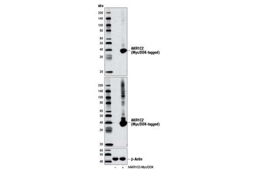 Western blot analysis of extracts from 293 cells, mock transfected (-) or transfected with a construct expressing Myc/DDK-tagged full-length human AKR1C2 (hAKR1C2-Myc/DDK; +), using AKR1C2 Antibody (upper), DYKDDDDK Tag (9A3) Mouse mAb #8146 (middle), or β-Actin (D6A8) Rabbit mAb #8457 (lower).