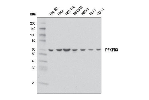 Image 6: Glycolysis II Antibody Sampler Kit