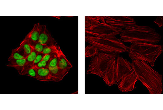 Confocal immunofluorescent analysis of HepG2 (left) and HeLa cells (right) using HNF4α (C11F12) Rabbit mAb (green). Actin filaments have been labeled with Alexa Fluor<sup>®</sup> 555 phalloidin (red).