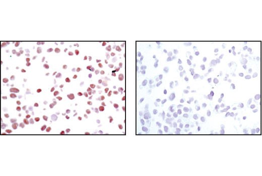 Immunohistochemical analysis of paraffin-embedded HepG2 cells in the presence of control peptide (left) or antigen specific peptide (right) using HNF4α (C11F12E8) Rabbit mAb.