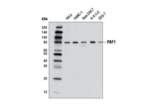Western blot analysis of extracts from various cell lines using PAF1 (D9G9X) Rabbit mAb.