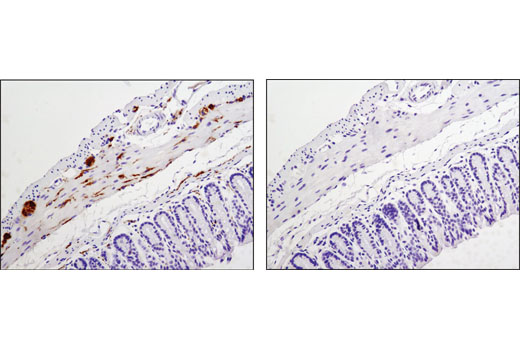 Immunohistochemical analysis of paraffin-embedded mouse colon, control (left) or λ phosphatase-treated (right), using Phospho-Tau (Thr181) (D9F4G) Rabbit mAb.