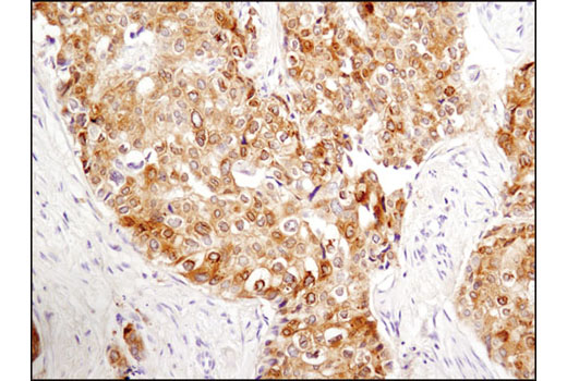 Immunohistochemical analysis of paraffin-embedded human breast carcinoma using Phospho-Tau (Thr181) (D9F4G) Rabbit mAb.
