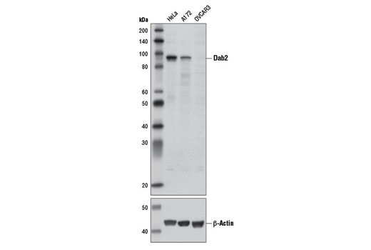 Western blot analysis of extracts from HeLa, A172, and OVCAR3 cells using Dab2 (D7O9T) Rabbit mAb and β-Actin (D6A8) Rabbit mAb #8457.