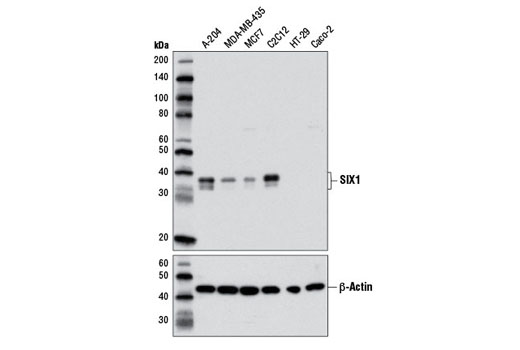Western blot analysis of extracts from various cell lines using SIX1 (D4A8K) Rabbit mAb (upper) and β-Actin (D6A8) Rabbit mAb #8457 (lower).
