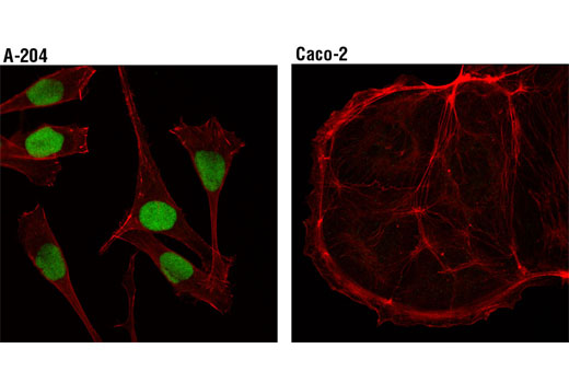 Confocal immunofluorescent analysis of A-204 (positive, left) and Caco-2 (negative, right) cells, using SIX1 (D4A8K) Rabbit mAb (green). Actin filaments were labeled with DyLight™ 554 Phalloidin #13054 (red).