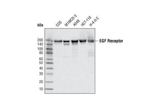 Western blot analysis of extracts from various cell types using EGF Receptor (C74B9) Rabbit mAb.
