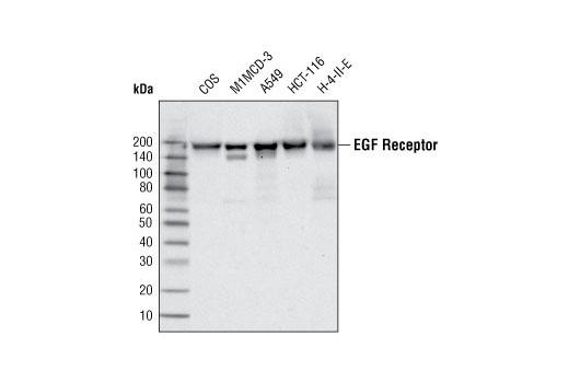 Monoclonal Antibody - EGF Receptor (C74B9) Rabbit mAb - Immunoprecipitation, Western Blotting, UniProt ID P00533, Entrez ID 1956 #2646, Egfr