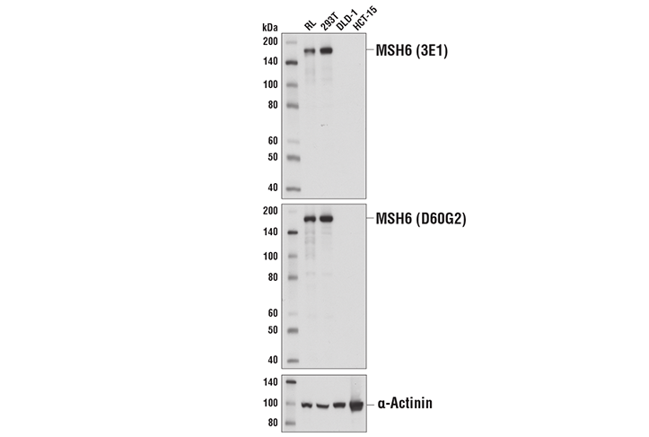 Western blot analysis of extracts from cell lines with varied expression of MSH6, using MSH6 (3E1) Mouse mAb (upper), MSH6 (D60G2) XP<sup>®</sup> Rabbit mAb #5424 (middle), or α-Actinin (D6F6) XP<sup>®</sup> Rabbit mAb #6487 (lower).