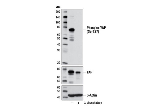 Antibody Sampler Kit Positive Regulation of Organ Growth