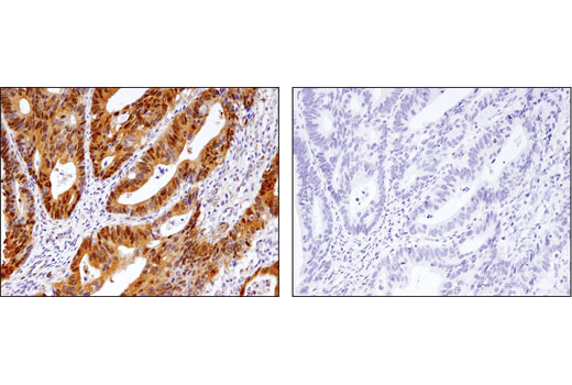 Immunohistochemical analysis of paraffin-embedded human colon adenocarcinoma, control (left) or λ-phosphatase treated (right), using Phospho-YAP (Ser127) (D9W2I) Rabbit mAb.