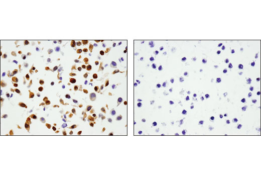 Immunohistochemical analysis of paraffin-embedded cell pellets, A-204 (left) and RL-7 (right), using Phospho-YAP (Ser127) (D9W2I) Rabbit mAb.