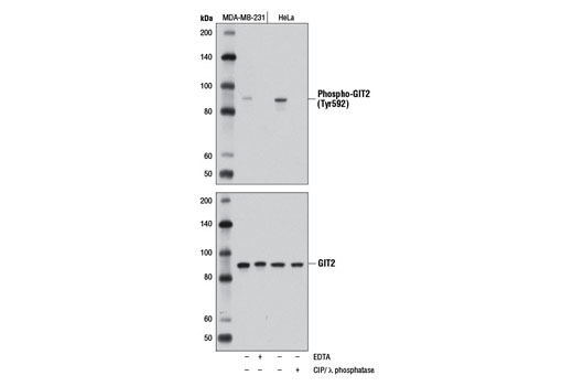 Monoclonal Antibody - Phospho-GIT2 (Tyr592) (D6L1J) Rabbit mAb, UniProt ID Q14161, Entrez ID 9815 #13167, Git2