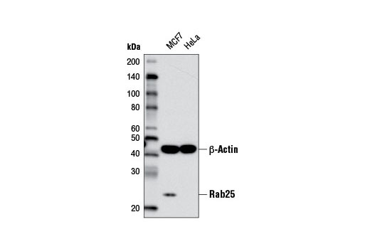 Western blot analysis of extracts from MCF7 (positive) and HeLa (negative) cells using Rab25 (D4P6P) XP<sup>®</sup> Rabbit mAb and β-Actin (D6A8) Rabbit mAb #8457 as a loading control.