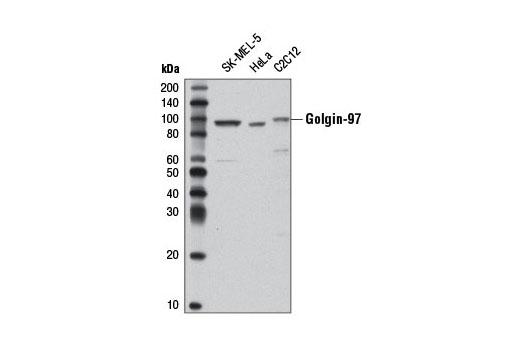Monoclonal Antibody - Golgin-97 (D8P2K) Rabbit mAb, UniProt ID Q92805, Entrez ID 2800 #13192 - Cytoskeletal Signaling