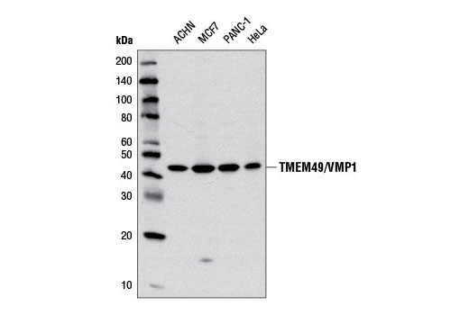 Western blot analysis of extracts from various cell lines using TMEM49/VMP1 (D6N4G) Rabbit mAb.