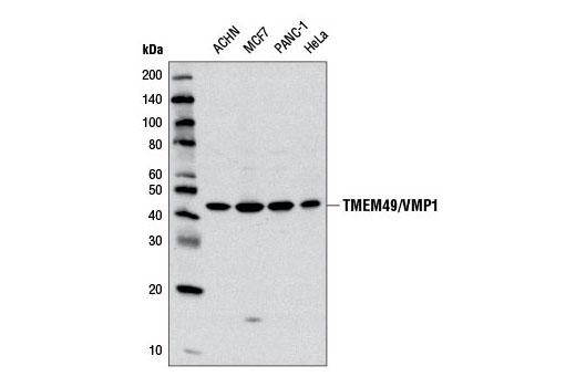 Monoclonal Antibody - TMEM49/VMP1 (D6N4G) Rabbit mAb - Immunoprecipitation, Western Blotting, UniProt ID Q96GC9, Entrez ID 81671 #12978