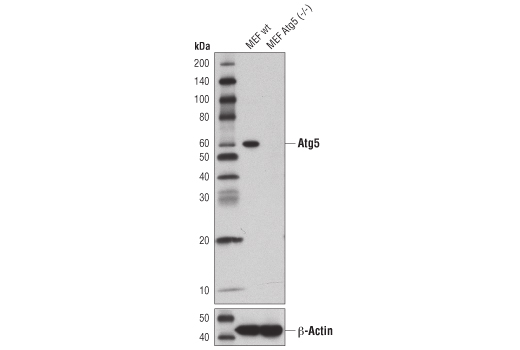 Western blot analysis of extracts from wild-type MEFs (wt) or MEFs from Atg5 knockouts (Atg5<sup>-/-</sup>) using Atg5 (D5F5U) Rabbit mAb (upper), or β-Actin (D6A8) Rabbit mAb #8457 (lower). Atg5<sup>-/-</sup> MEFs were kindly provided by Dr. Ramnik Xavier, Massachusetts General Hospital, Harvard Medical School, Boston, MA.