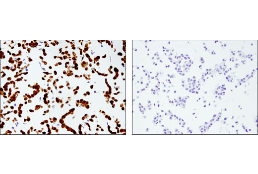 Immunohistochemical analysis of paraffin-embedded DU 145 (left; positive) and LNCaP (right; negative) cell pellets using UCHL1 (D3T2E) XP<sup>®</sup> Rabbit mAb.