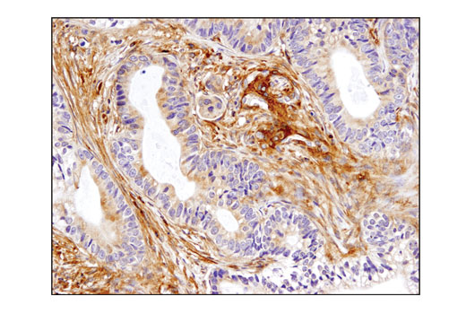 Immunohistochemical analysis of paraffin-embedded human colon carcinoma using Talin-1 (C45F1) Rabbit mAb.