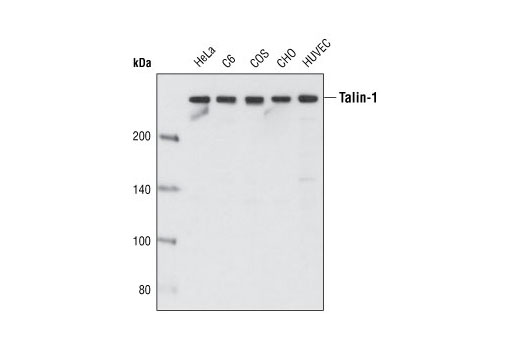 Western blot analysis of extracts from various cell types using Talin-1 (C45F1) Rabbit mAb.
