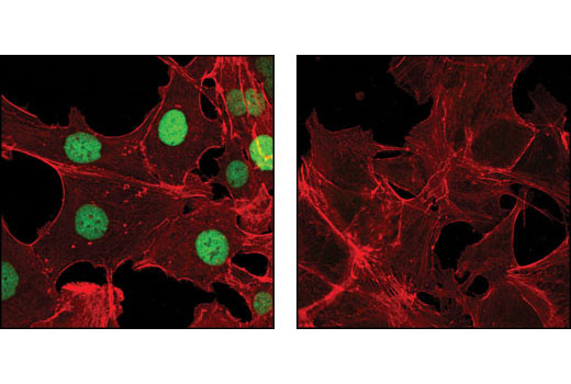 Confocal immunofluorescent analysis of SK-OV-3 (left) and DLD-1 cells (right) using Evi-1 (C50E12) Rabbit mAb (green). Actin filaments have been labeled with DY-554 phalloidin (red).