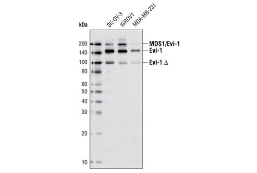 Western blot analysis of extracts from various cell lines using Evi-1 (C50E12) Rabbit mAb. MDS/Evi-1 denotes the fusion between MDS1 and Evi-1 (see reference #6) and Evi-1 Δ denotes the truncated form of Evi-1 (see reference #5).