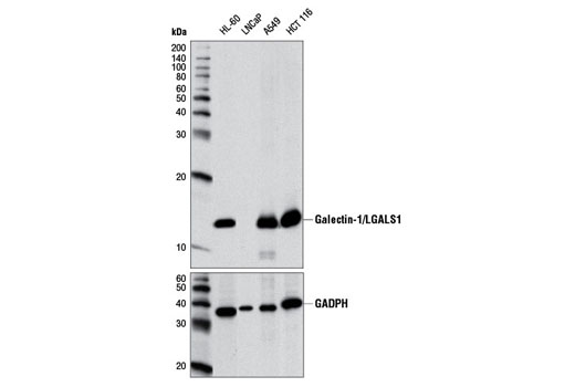 Western blot analysis of extracts from various cell lines using Galectin-1/LGALS1 (D6O8T) Rabbit mAb (upper) and GAPDH (D16H11) Rabbit mAb #5174 (lower). The LNCap cell line extract is negative for galectin-1/LGALS1 expression as expected.