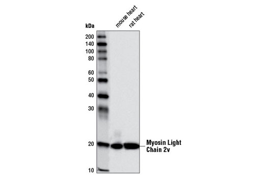 Western Blotting Image 1: Myosin Light Chain 2v (D5I1C) (Cardiac Isoform) Rabbit mAb (Rodent Specific)