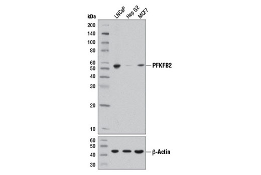 Western blot analysis of extracts from LNCaP, Hep G2, and MCF7 cells using PFKFB2 (D5I5F) Rabbit mAb (upper) and β-Actin (D6A8) Rabbit mAb #8457 (lower).