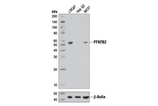 Image 12: Glycolysis II Antibody Sampler Kit