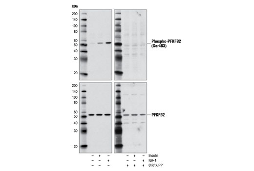 Western blot analysis of extracts from serum starved HeLa cells, untreated (-) or treated with insulin (150 nM, 5 min; +) or IGF-1 (100 ng/ml, 5 min; +), using Phospho-PFKFB2 (Ser483) (D4R1W) Rabbit mAb (upper) or PFKFB2 (D7G5R) Rabbit mAb #13045 (lower). The phospho-specificity of Phospho-PFKFB2 (Ser483) (D4R1W) Rabbit mAb is verified by treating the nitrocellulose membranes with calf intestinal alkaline phosphatase (CIP) and λ protein phosphatase (λ PP) following transfer of proteins from the SDS-PAGE gel to the membranes.