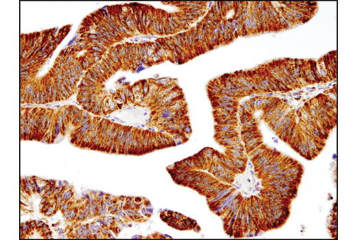 Immunohistochemical analysis of paraffin-embedded human colon adenocarcinoma using SOD2 (D3X8F) XP<sup>®</sup> Rabbit mAb.