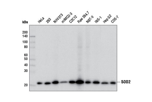 Western blot analysis of extracts from various cell lines using SOD2 (D3X8F) XP<sup>®</sup> Rabbit mAb.
