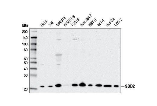Western blot analysis of extracts from various cell lines using SOD2 (D9V9C) Rabbit mAb.