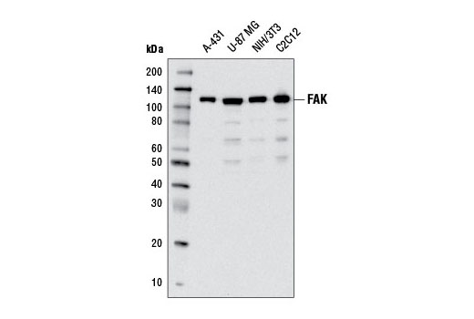 Western blot analysis of extracts from various cell lines using FAK (D2R2E) Rabbit mAb.