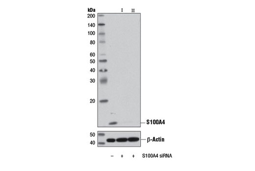 Western blot analysis of extracts from A172 cells, transfected with 100 nM SignalSilence<sup>®</sup> Control siRNA (Unconjugated) #6568 (-), SignalSilence<sup>®</sup> S100A4 siRNA I (+), or SignalSilence<sup>® </sup>S100A4 siRNA II #13021 (+), using S100A4 (D9F9D) Rabbit mAb #13018 (upper) or β-Actin (D6A8) Rabbit mAb #8457 (lower). The S100A4 (D9F9D) Rabbit mAb confirms silencing of S100A4 expression, while the β-Actin (D6A8) Rabbit mAb is used as a loading control.
