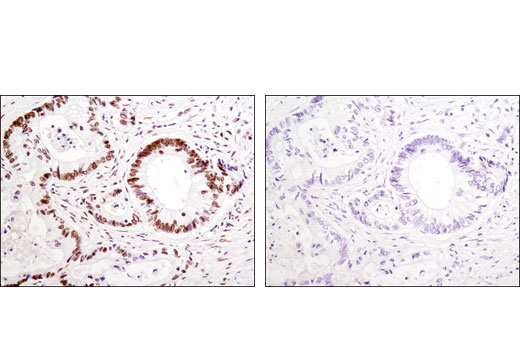 Immunohistochemical analysis of paraffin-embedded human colon carcinoma using HSF1 (D3L8I) Rabbit mAb in the presence of control peptide (left) or antigen-specific peptide (right).