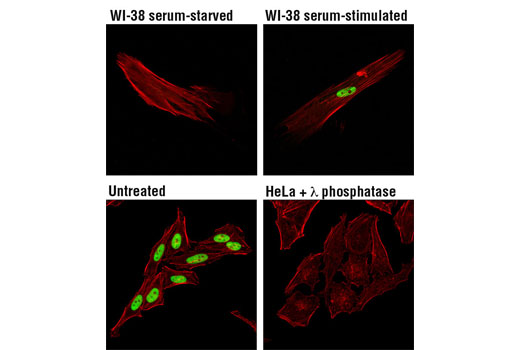 Confocal immunofluorescent analysis of WI-38 cells, serum-deprived (48 hr; upper left), or serum-treated (10%, 24 hr; upper right) and HeLa cells, untreated (lower left), or λ phosphatase-treated (2 hr; lower right), using Phospho-MCM2 (Ser139) (D1Z8X) XP<sup>®</sup> Rabbit mAb (green). Actin filaments were labeled with DY-554 phalloidin (red).