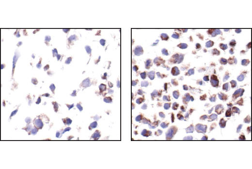 Immunohistochemical analysis of paraffin embedded COS cells untreated (left) or TPA-treated (right), showing induced cytoplasmic staining using Phospho-Bad (Ser112) (40A9) Rabbit mAb.