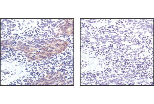 Immunohistochemical analysis of paraffin-embedded human prostate carcinoma, using Phospho-Bad (Ser 112) (40A9) Rabbit Monoclonal Antibody preincubated with control peptide (left) or Phospho-Bad (Ser 112) Blocking Peptide (IHC Specific) #1026 (right).