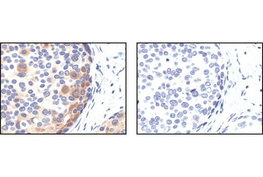 Immunohistochemical analysis of paraffin-embedded human breast carcinoma, untreated (left) or lambda phosphatase treated (right), using Phospho-Bad (Ser 112) (40A9) Rabbit mAb.