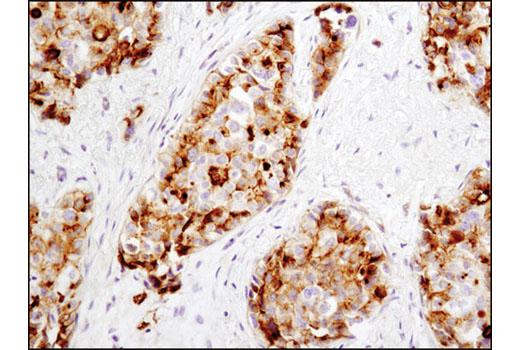 Monoclonal Antibody - RAIG1 (D4S7D) XP® Rabbit mAb, UniProt ID Q8NFJ5, Entrez ID 9052 #12968, Raig1